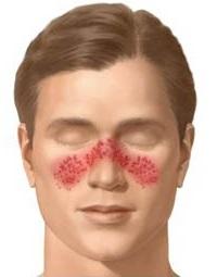Системная красная волчанка (СКВ) - причины, симптомы, диагностика и лечение